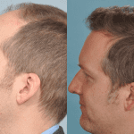hair-transplant-before-and-after-picture-UK-patient-April-2013