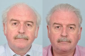 marty_whelan_hair_transplant