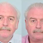 marty_whelan_hair_transplant