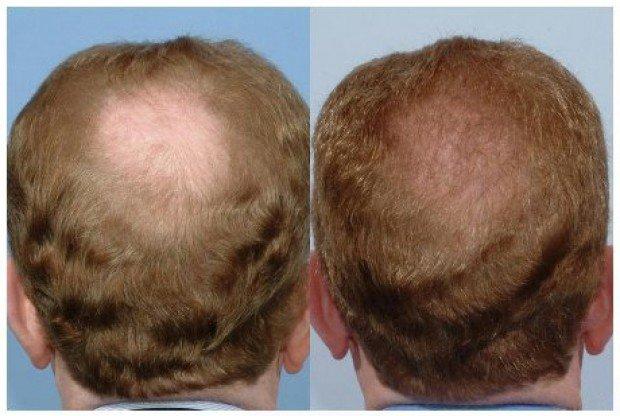Main Causes Of Hair Loss In Men