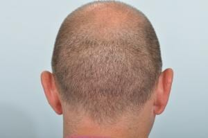 FUE hair transplant scar