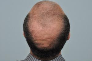 Crown area before hair restoration