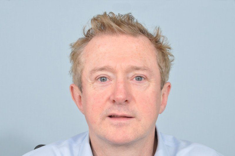 Before-LOUIS WALSH