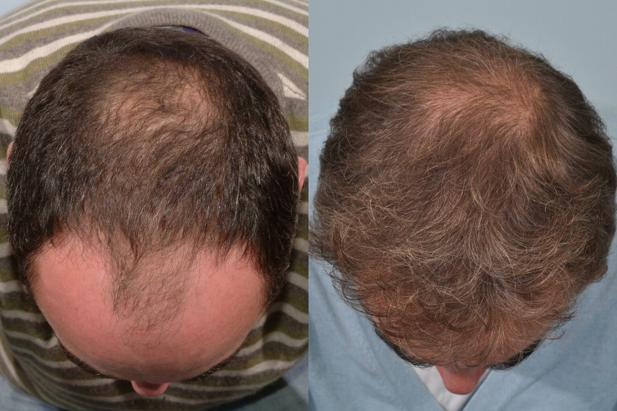 James Nesbitt hair transplant at HRBR - Before and After