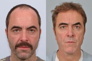 James Nesbitt hair transplant before and after
