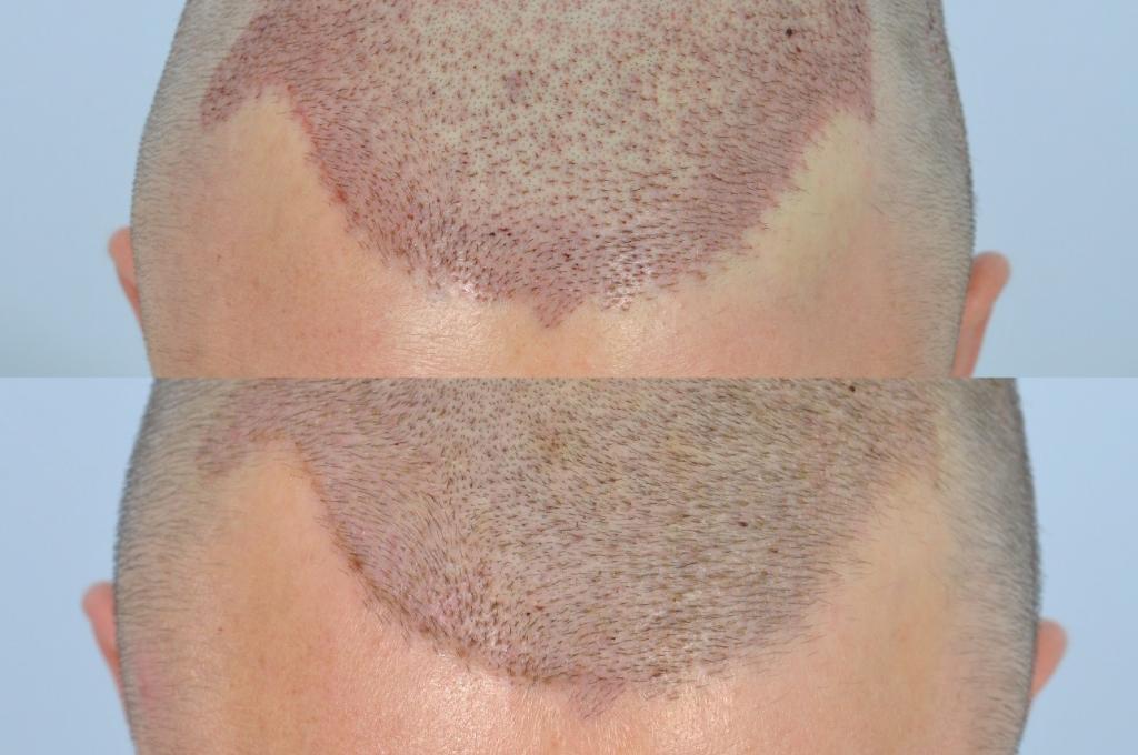 does a hair transplant hurt?