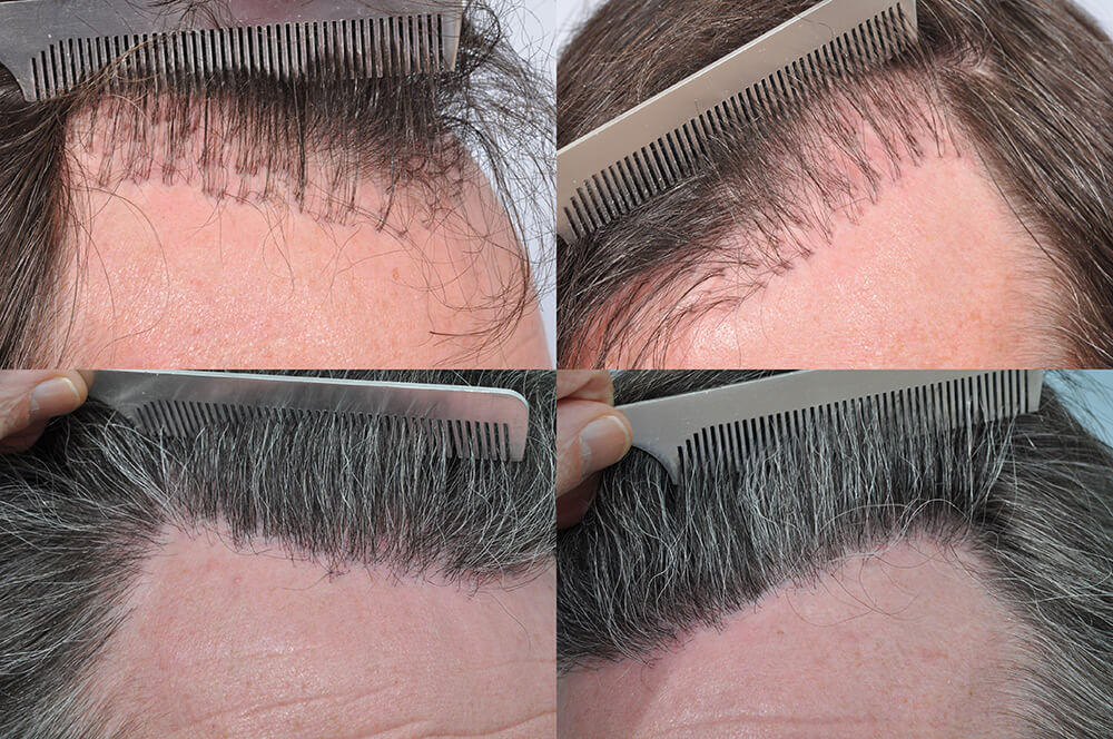 Hair transplant repair - before and after