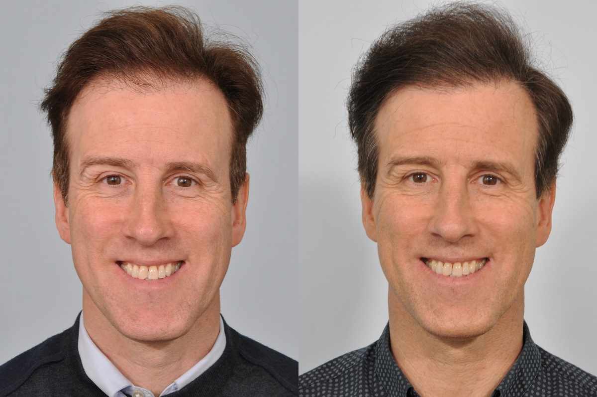 Anton du Beke before and after hair transplant