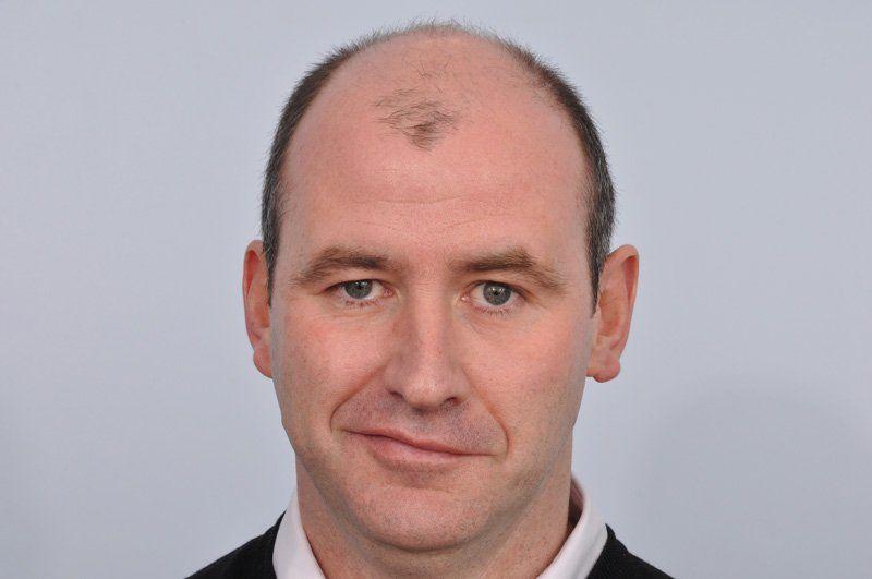 Before-Bald Scalp Treatment