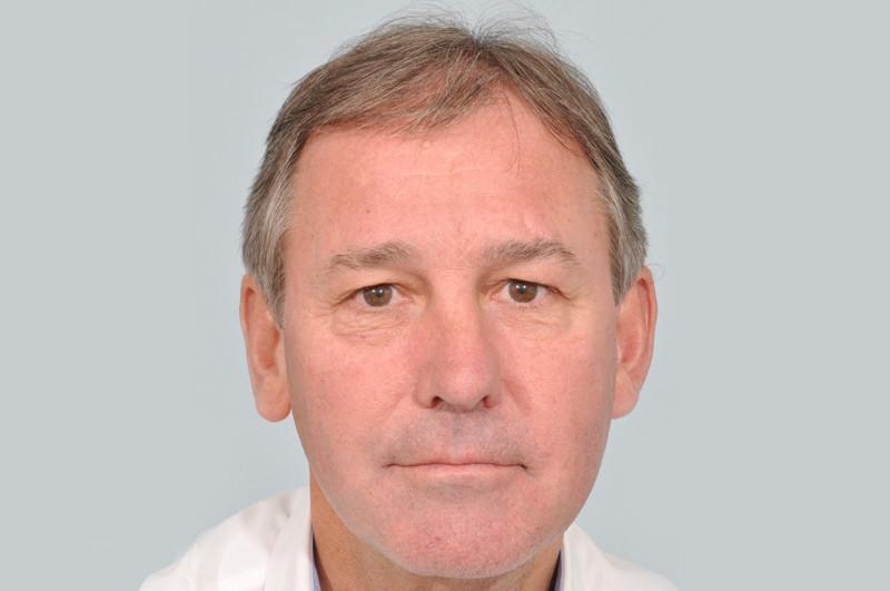 Before-Bryan Robson