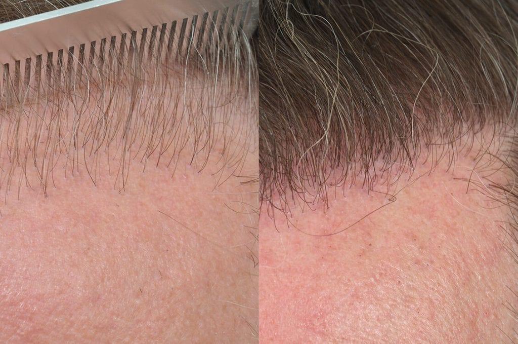 Case Study Three - Hairline Design
